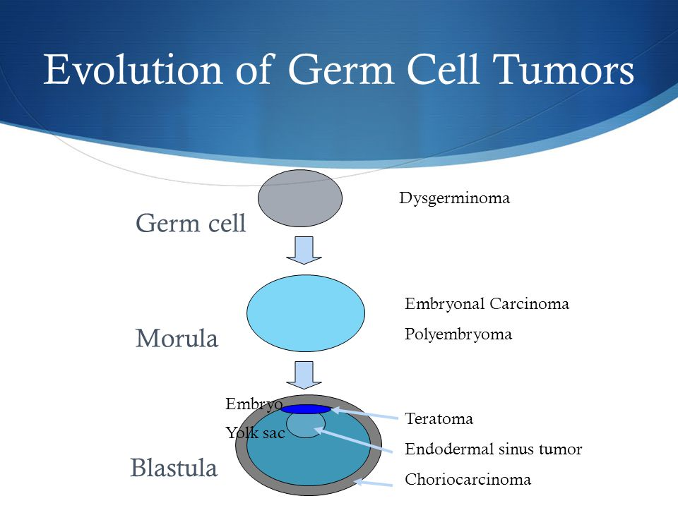Evolution of Germ Cell Tumors