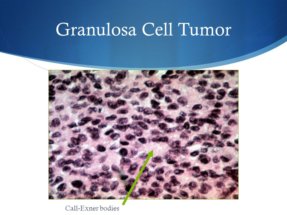 Granulosa Cell Tumor Call-Exner bodies