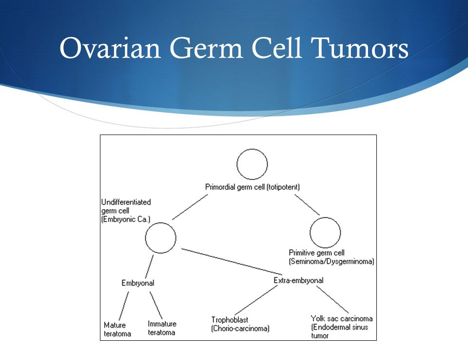 Ovarian Germ Cell Tumors