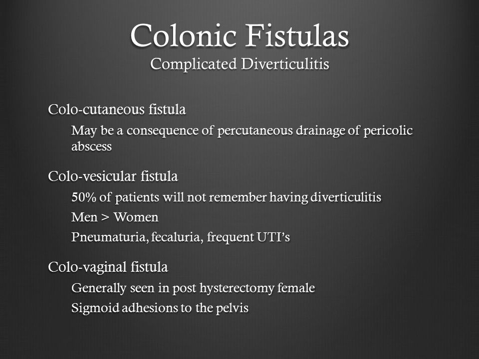Colonic Fistulas Complicated Diverticulitis