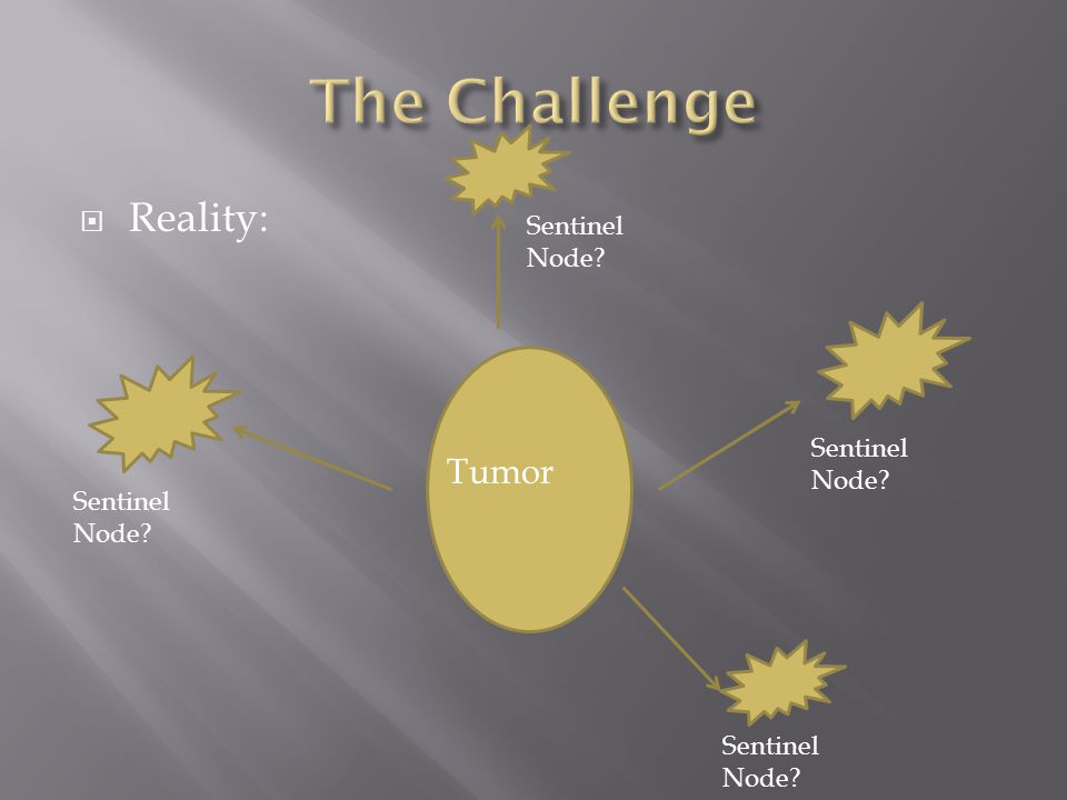 The Challenge Reality: Tumor Sentinel Node Sentinel Node