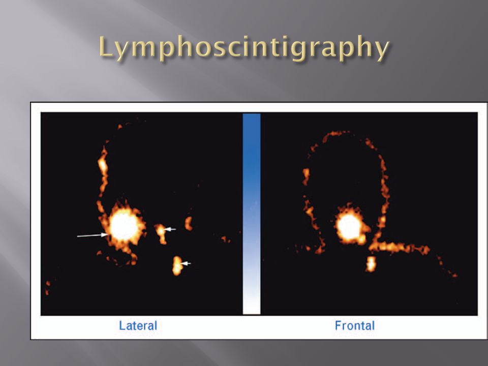 Lymphoscintigraphy
