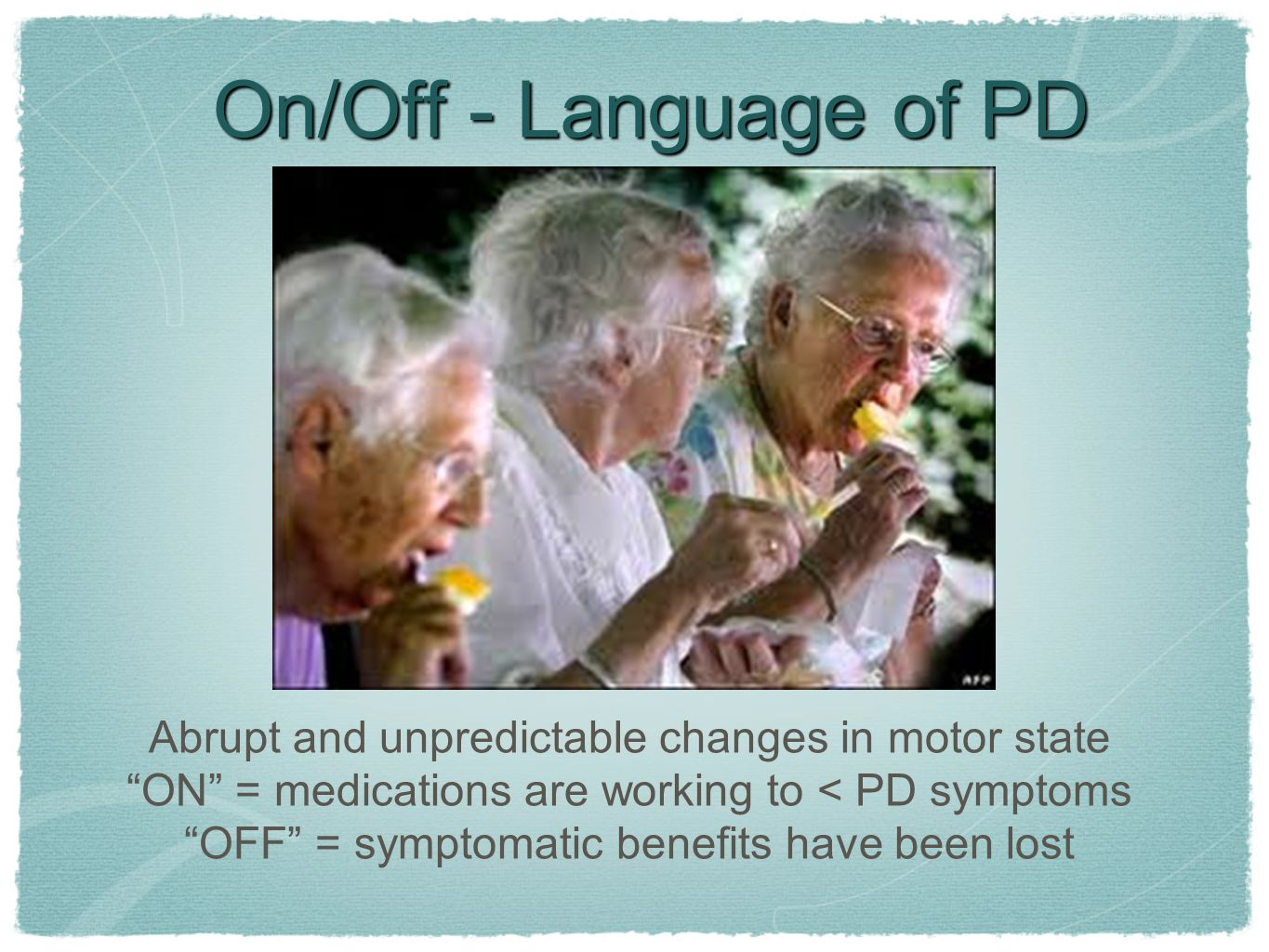 On/Off - Language of PD Abrupt and unpredictable changes in motor state. ON = medications are working to < PD symptoms.