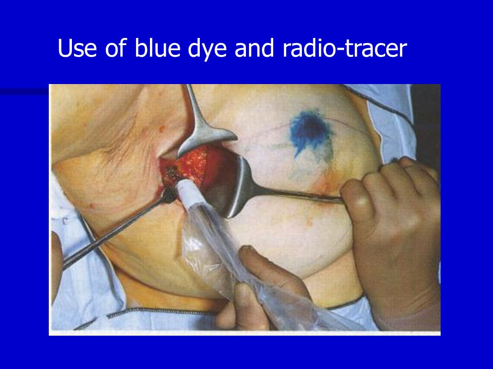 Use of blue dye and radio-tracer