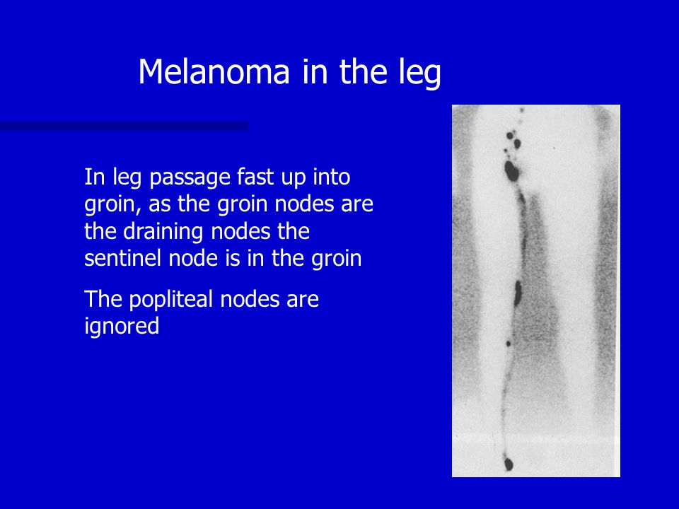 Melanoma in the leg In leg passage fast up into groin, as the groin nodes are the draining nodes the sentinel node is in the groin.