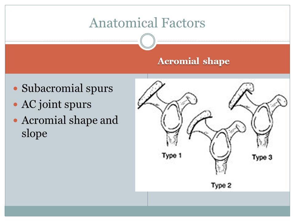 Anatomical Factors Subacromial spurs AC joint spurs