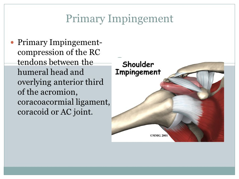 Primary Impingement