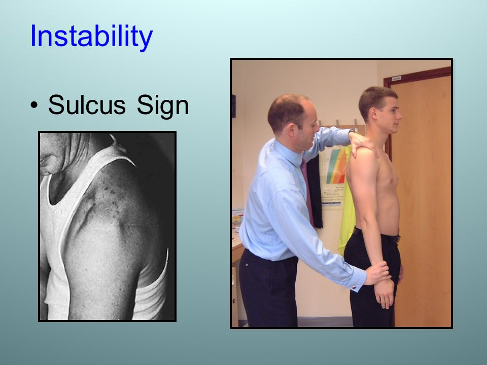 Instability Sulcus Sign