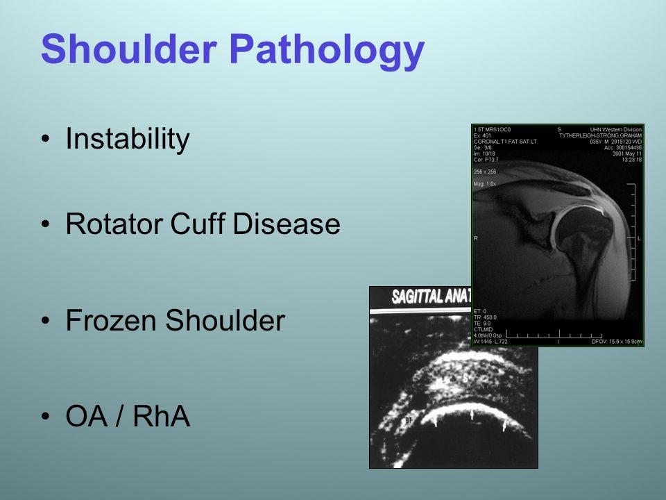 Shoulder Pathology Instability Rotator Cuff Disease Frozen Shoulder