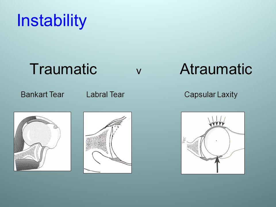 Instability Traumatic v Atraumatic Bankart Tear Labral Tear