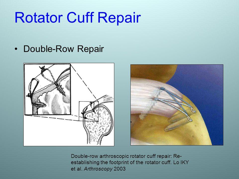 Rotator Cuff Repair Double-Row Repair