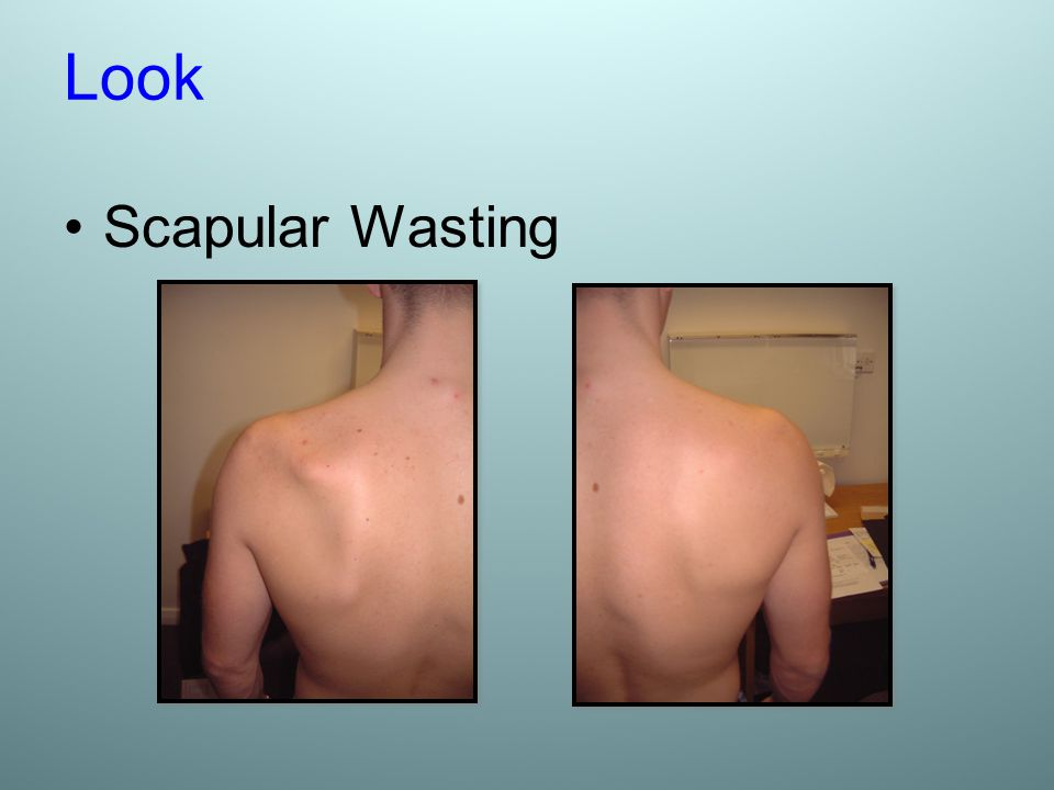 Look Scapular Wasting
