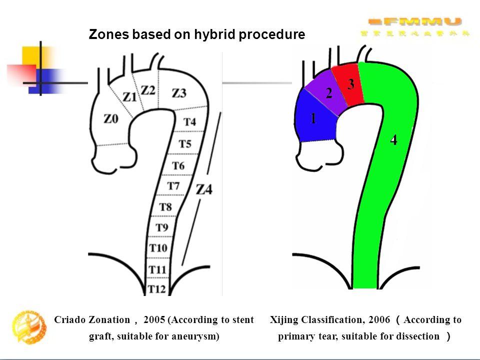 Zones based on hybrid procedure