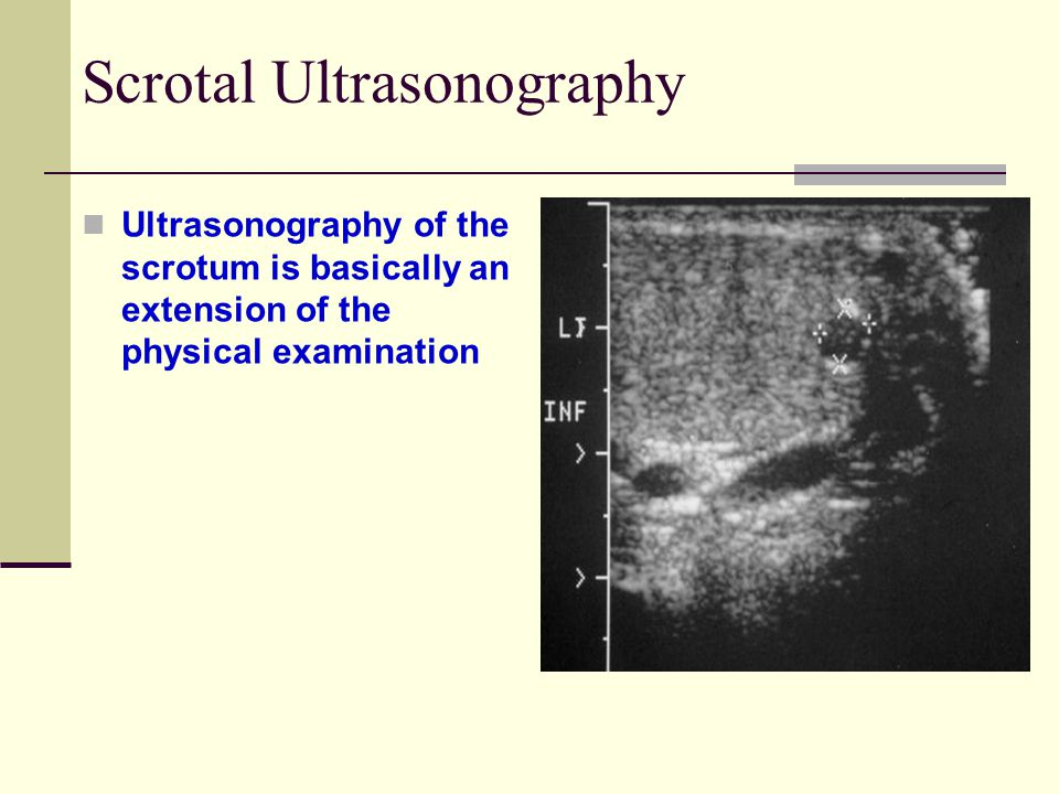 Scrotal Ultrasonography