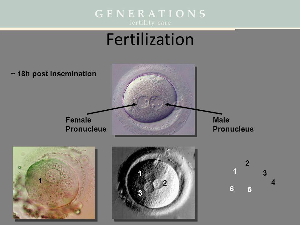 Fertilization ~ 18h post insemination Female Pronucleus Male