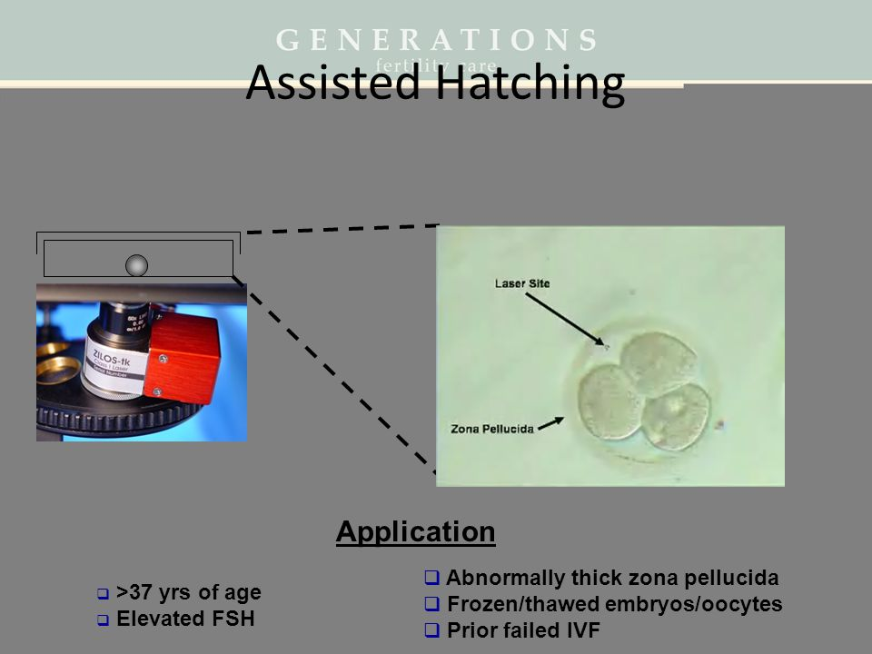 Assisted Hatching Application Abnormally thick zona pellucida