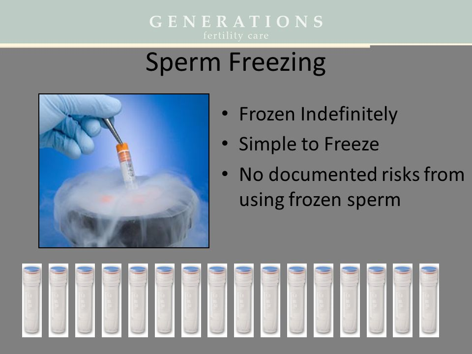 Sperm Freezing Frozen Indefinitely Simple to Freeze
