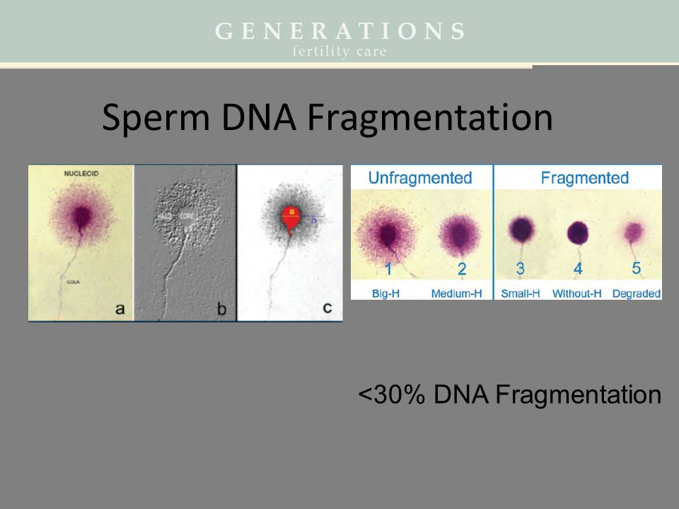 Sperm DNA Fragmentation