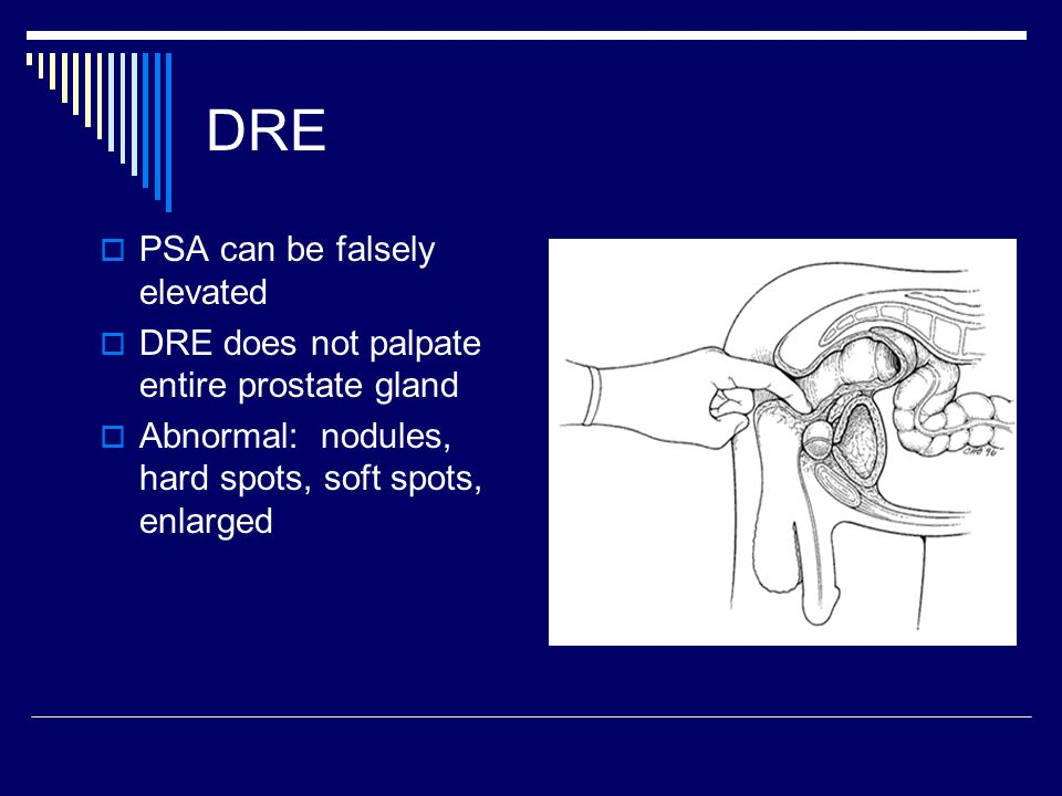 DRE PSA can be falsely elevated