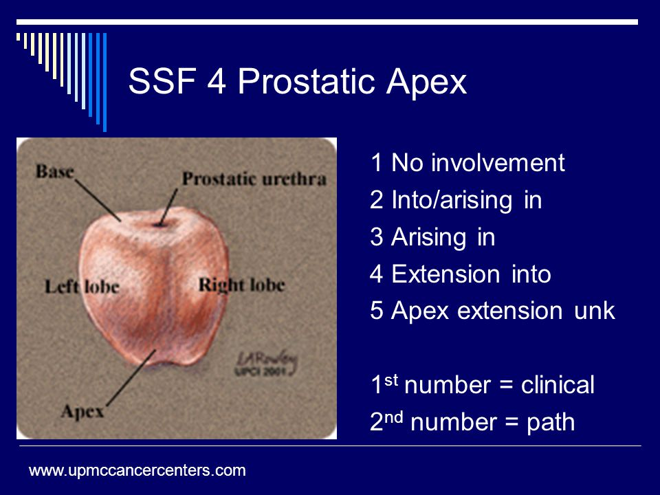 SSF 4 Prostatic Apex 1 No involvement 2 Into/arising in 3 Arising in