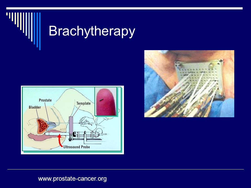 Brachytherapy www.prostate-cancer.org