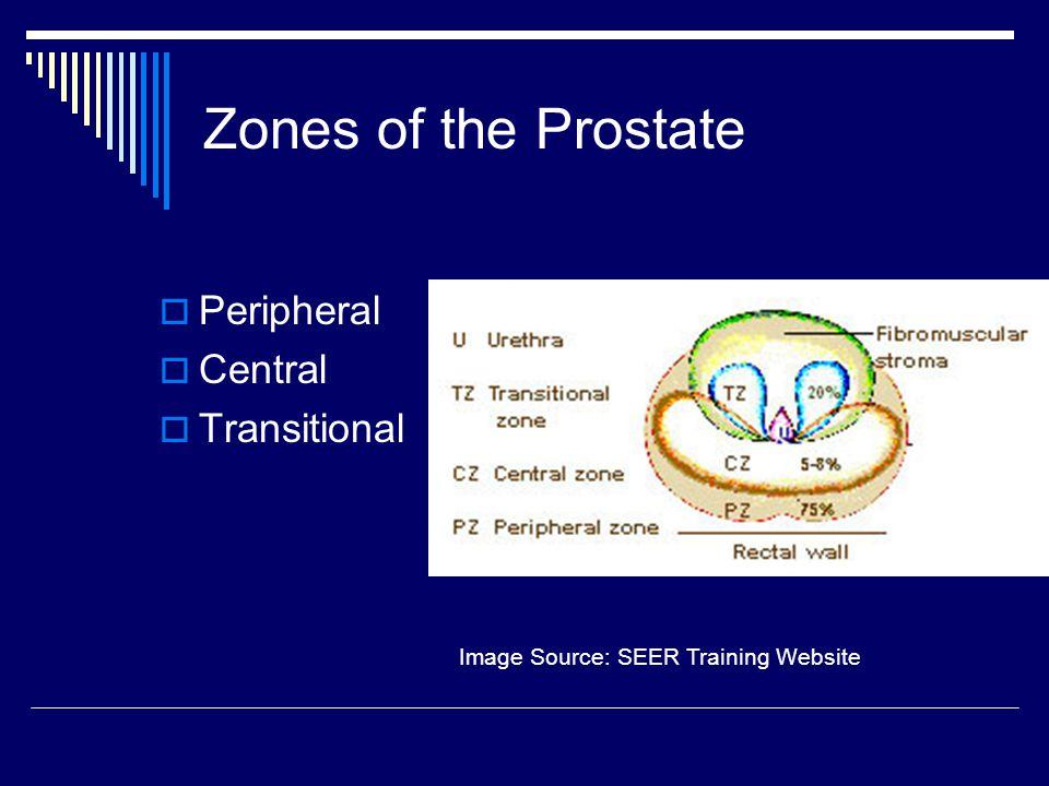 Image Source: SEER Training Website