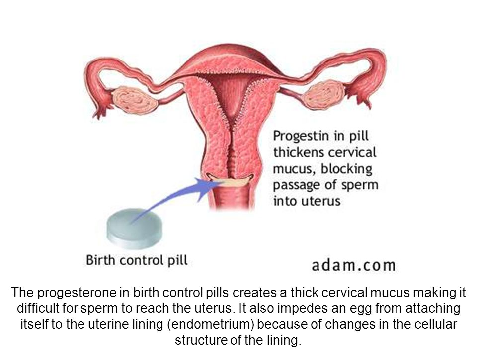 The progesterone in birth control pills creates a thick cervical mucus making it difficult for sperm to reach the uterus.