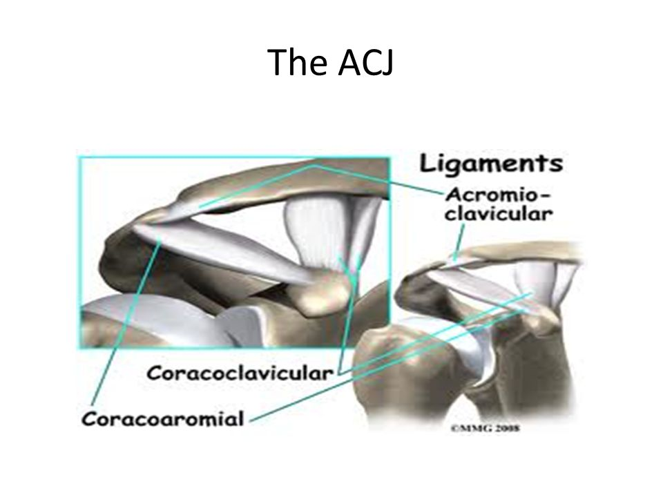 The ACJ