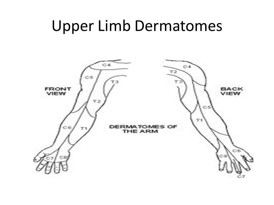 Upper Limb Dermatomes