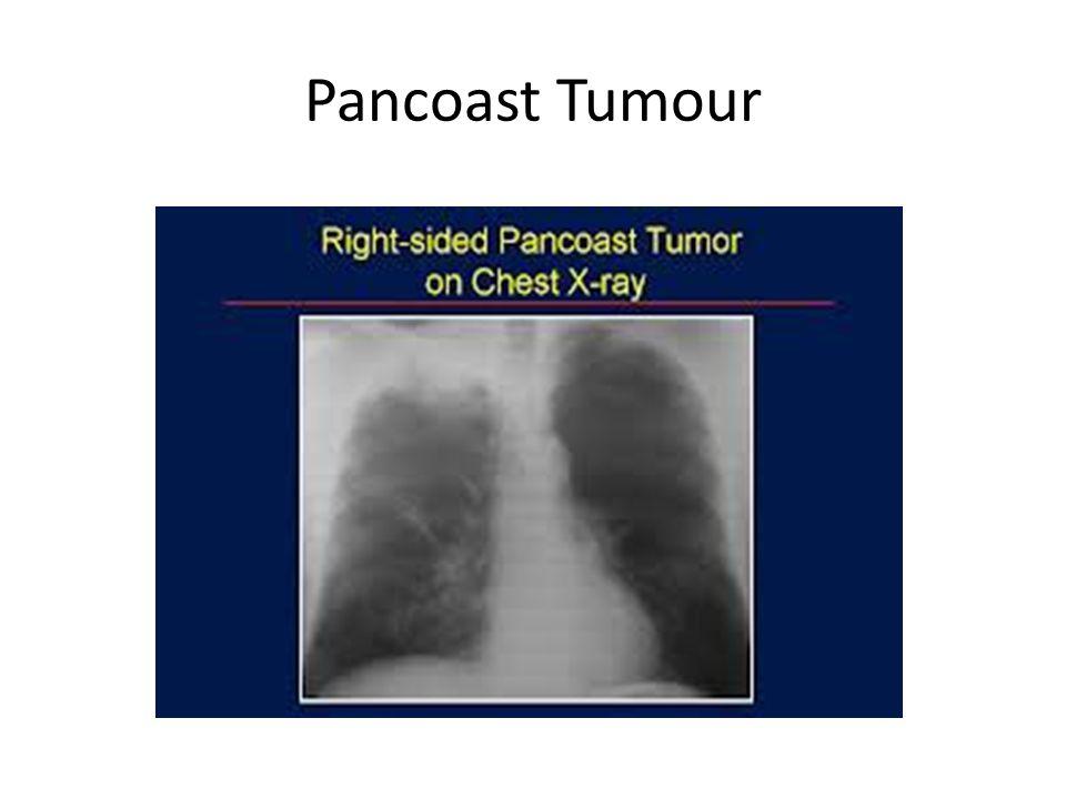 Pancoast Tumour