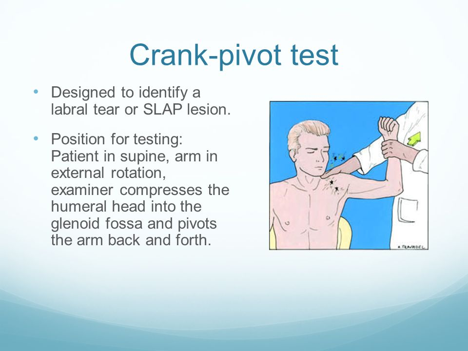 Crank-pivot test Designed to identify a labral tear or SLAP lesion.