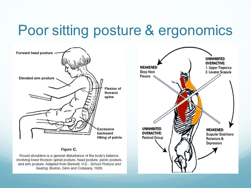 Poor sitting posture & ergonomics