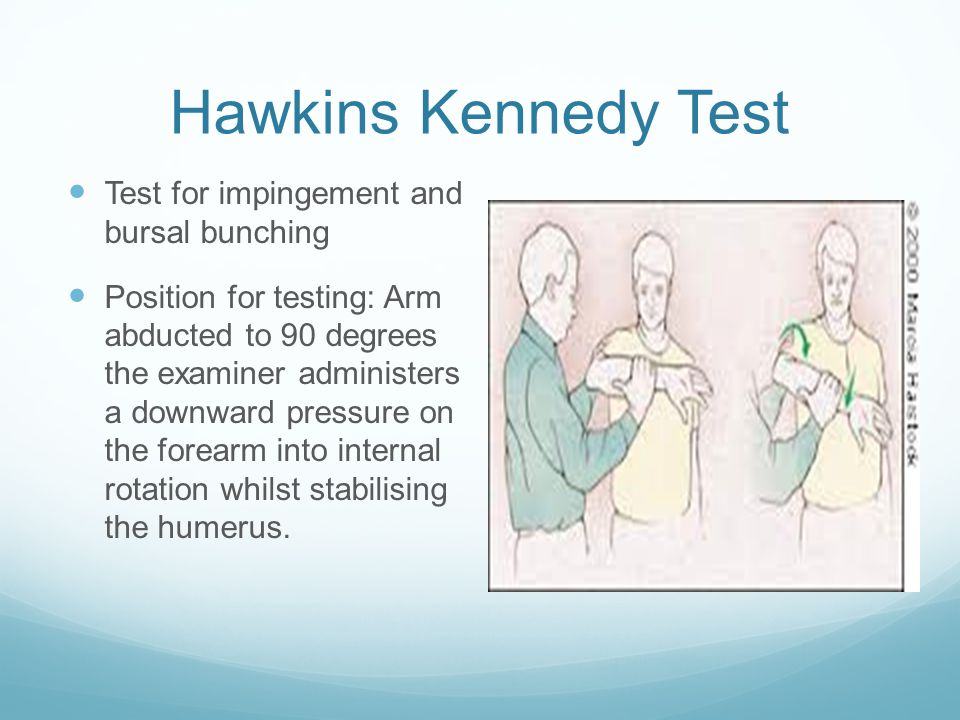 Hawkins Kennedy Test Test for impingement and bursal bunching