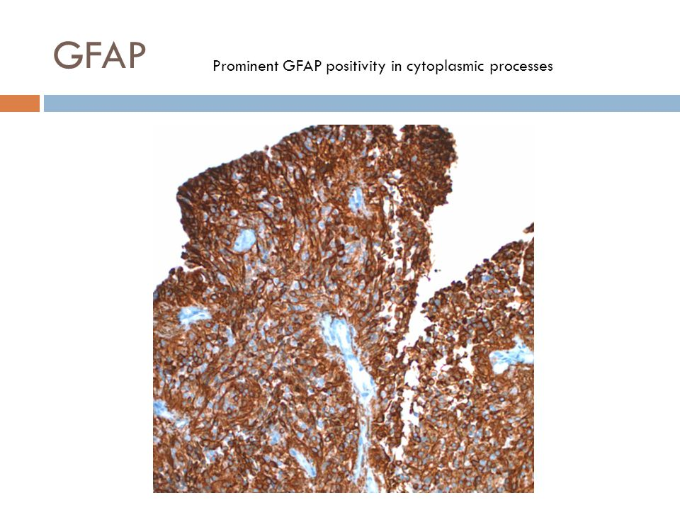 Prominent GFAP positivity in cytoplasmic processes