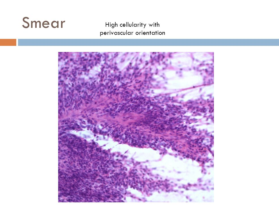 High cellularity with perivascular orientation