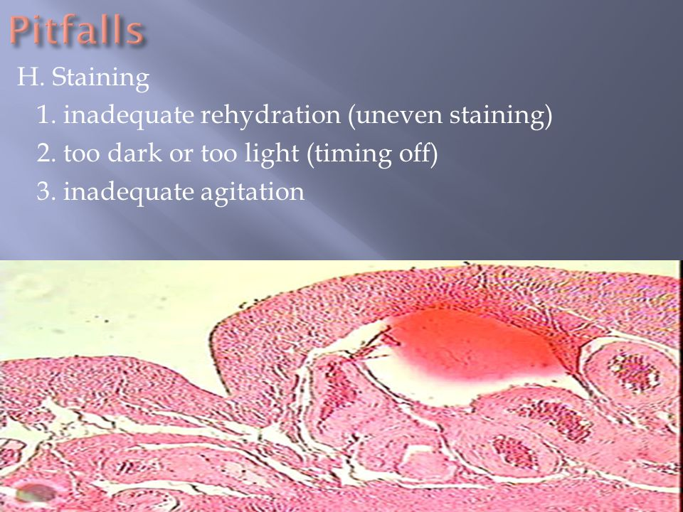 Pitfalls H. Staining 1. inadequate rehydration (uneven staining)