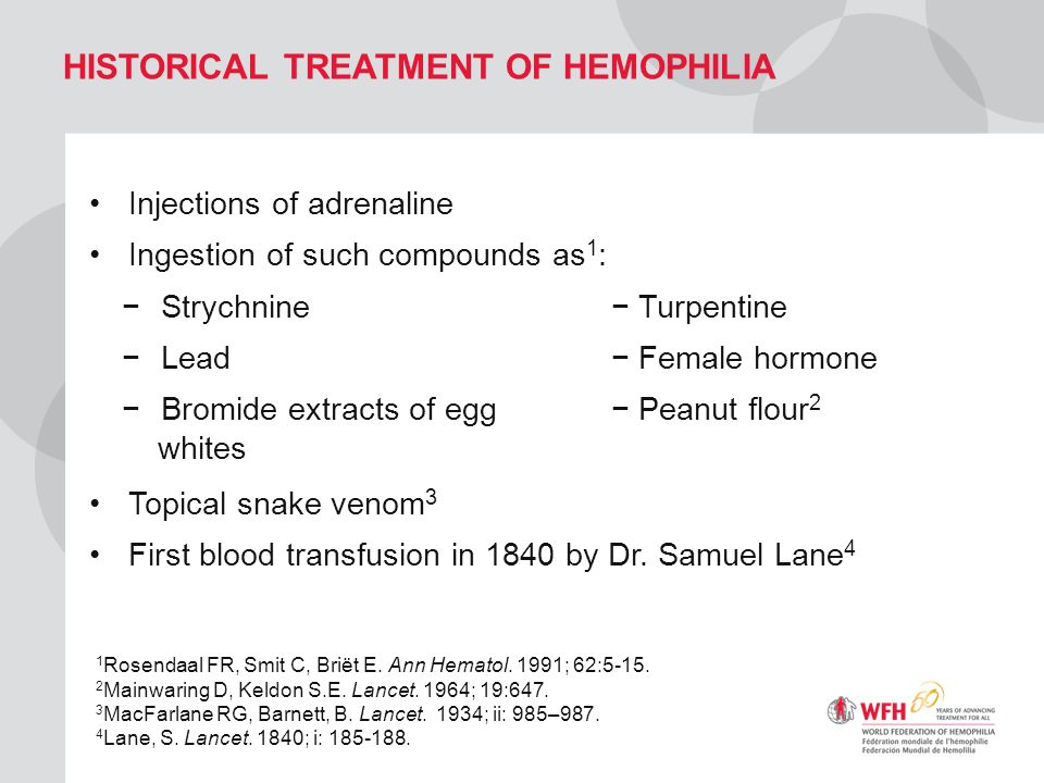 Historical treatment of hemophilia