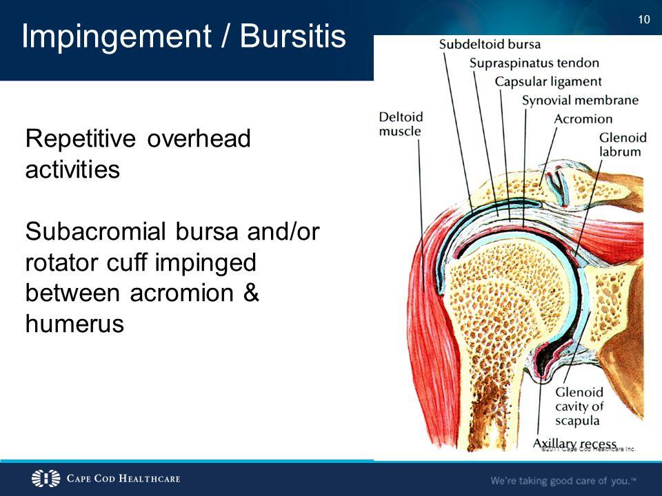Impingement / Bursitis