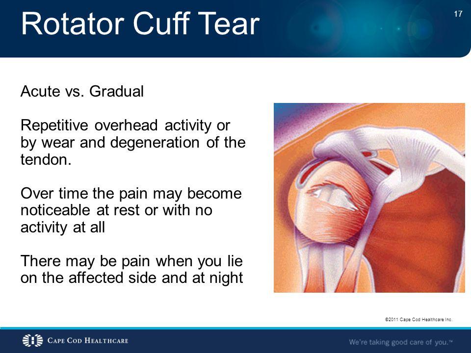 Rotator Cuff Tear Acute vs. Gradual