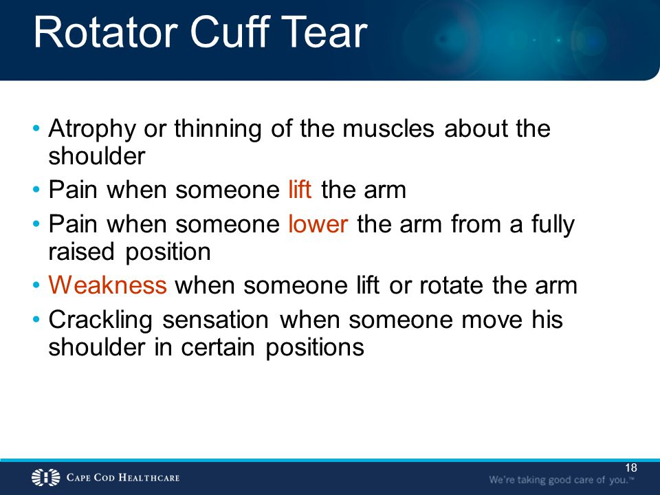 Rotator Cuff Tear Atrophy or thinning of the muscles about the shoulder. Pain when someone lift the arm.