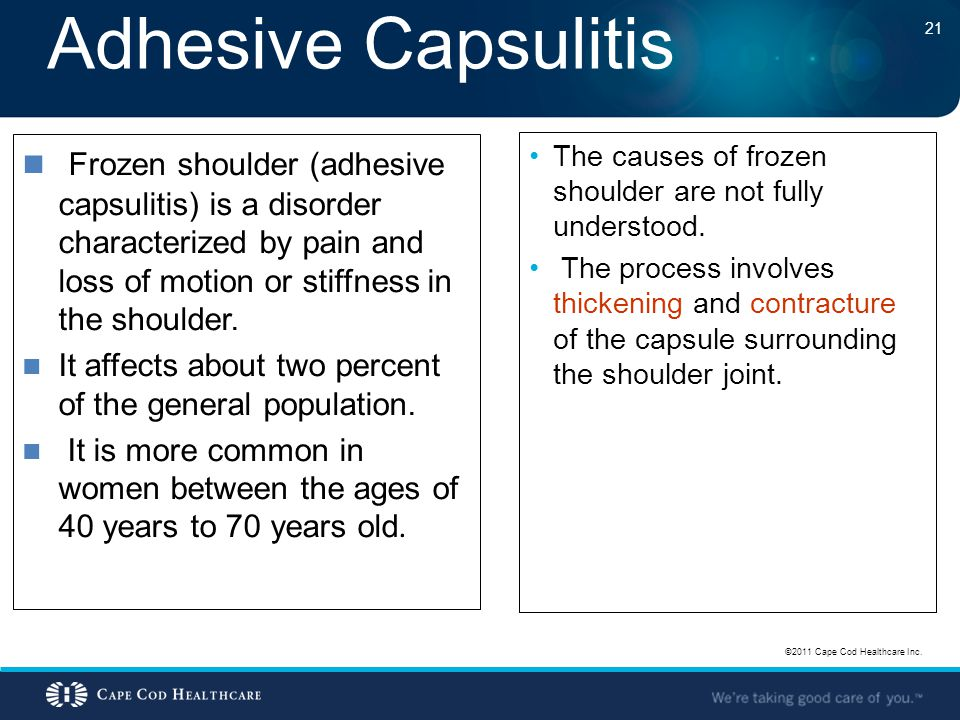 Adhesive Capsulitis Frozen shoulder (adhesive capsulitis) is a disorder characterized by pain and loss of motion or stiffness in the shoulder.