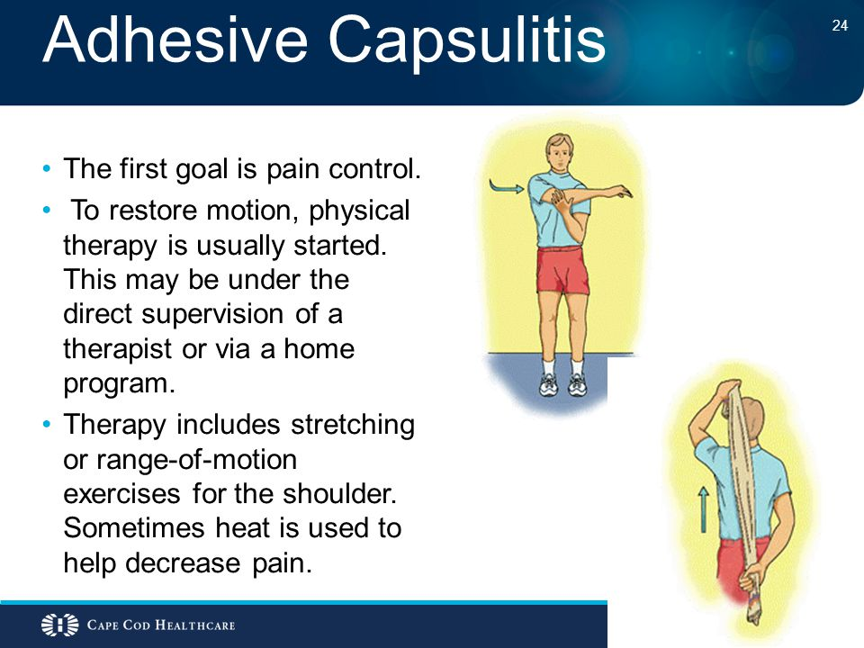Adhesive Capsulitis The first goal is pain control.