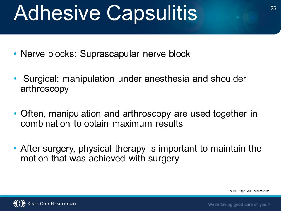 Adhesive Capsulitis Nerve blocks: Suprascapular nerve block