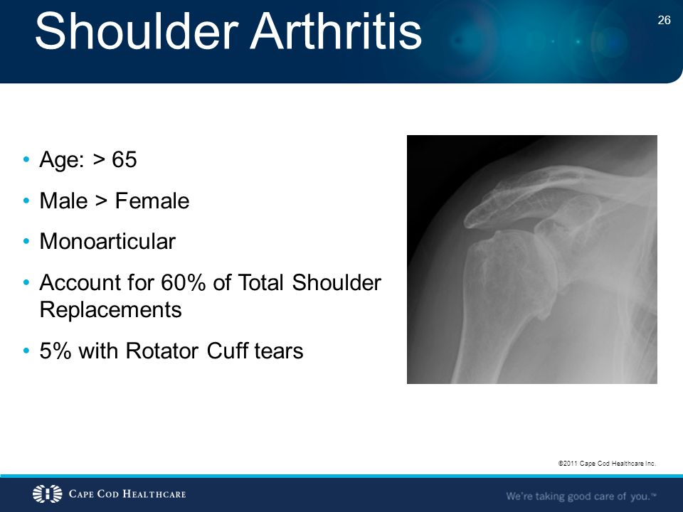 Shoulder Arthritis Age: > 65 Male > Female Monoarticular