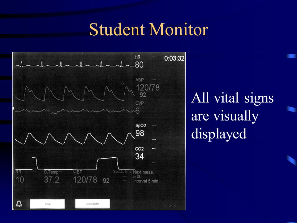 Student Monitor All vital signs are visually displayed