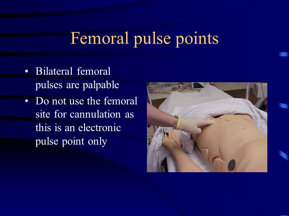 Femoral pulse points Bilateral femoral pulses are palpable