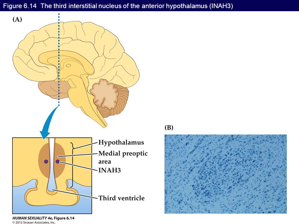 Figure 6.14 The third interstitial nucleus of the anterior hypothalamus (INAH3)