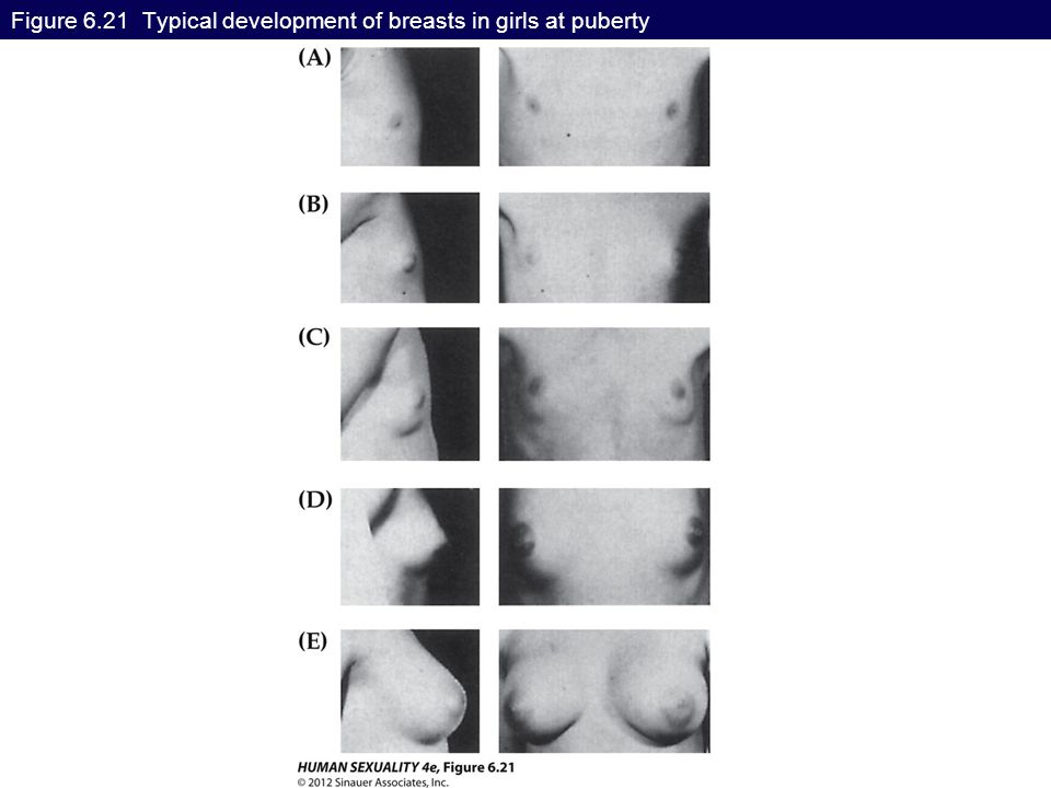 Figure 6.21 Typical development of breasts in girls at puberty
