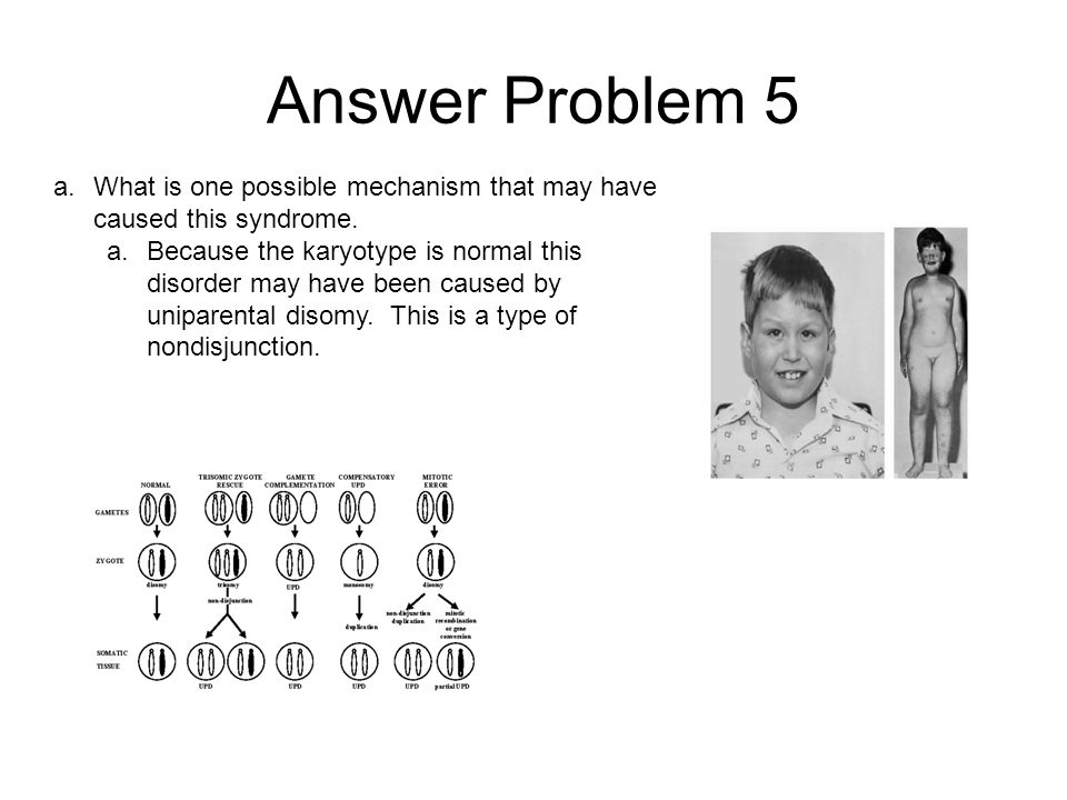 Answer Problem 5 What is one possible mechanism that may have caused this syndrome.