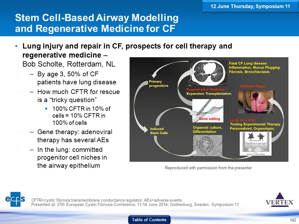 Stem Cell-Based Airway Modelling and Regenerative Medicine for CF